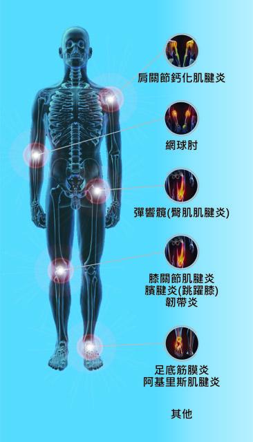 肌肉注射_骨科及創傷科 | 陳博光教授聯合診所